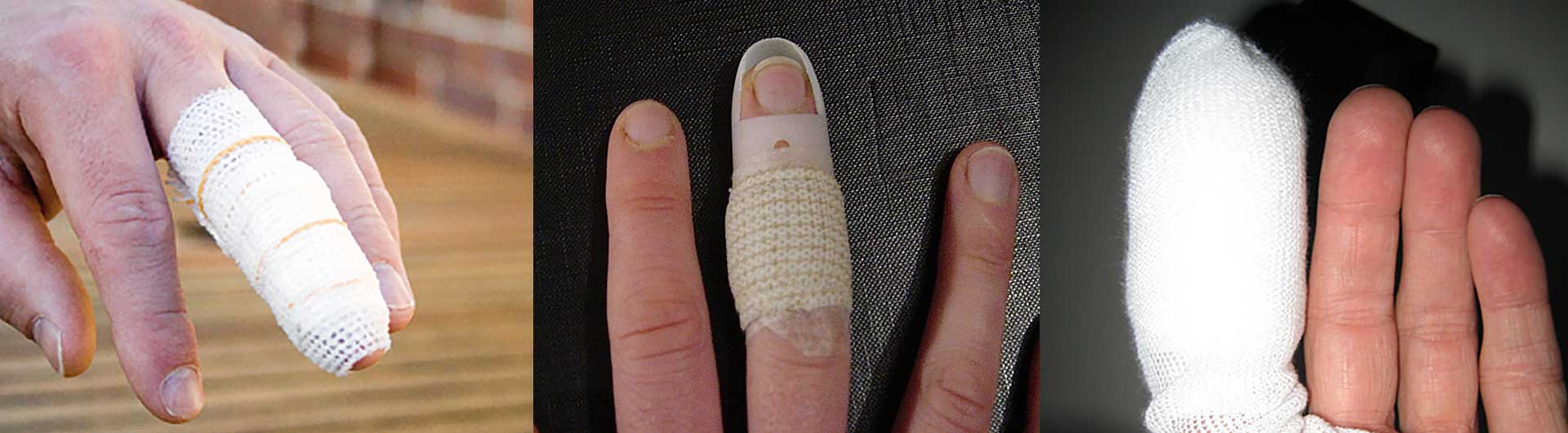 injured fingers